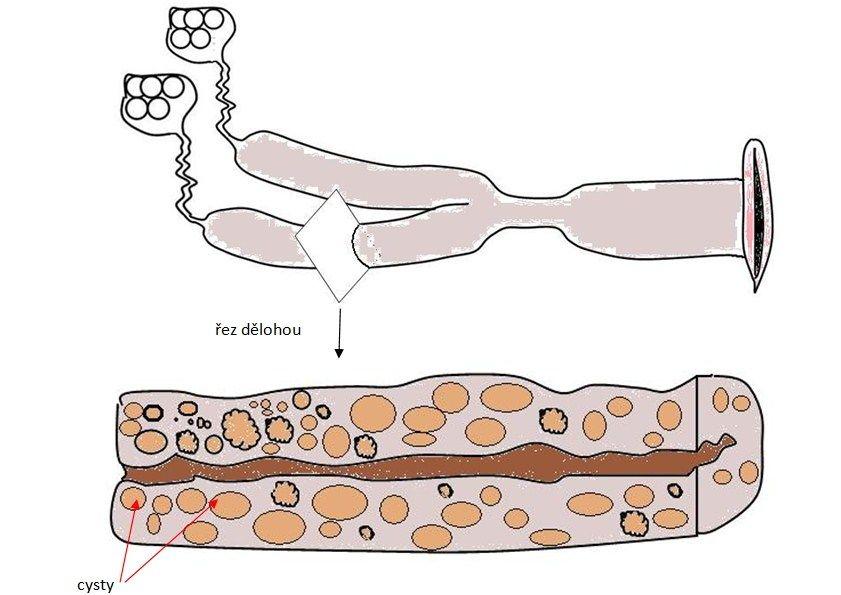 nákres cystické hyperplazie dělohy