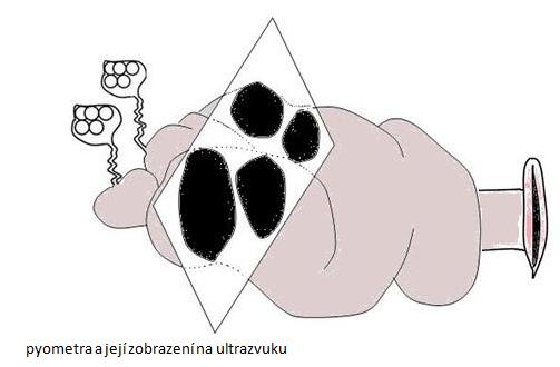 pyometra ajejí zobrazení naultrazvuku (schema zobrazení pyometry ultrazvukem